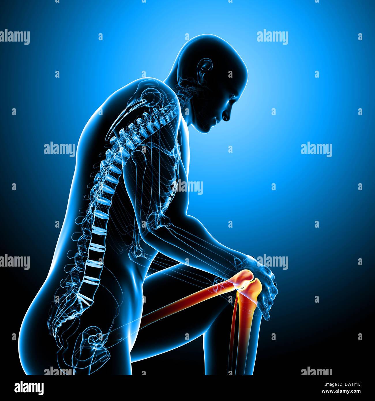 Schmerzen Knie Mann zeichnen Stockfoto, Bild: 67545562 - Alamy