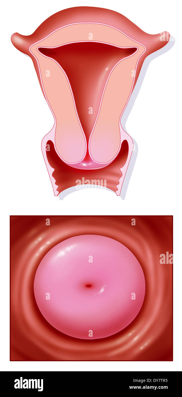 Uterus And Cervix Stockfotos Uterus And Cervix Bilder Alamy