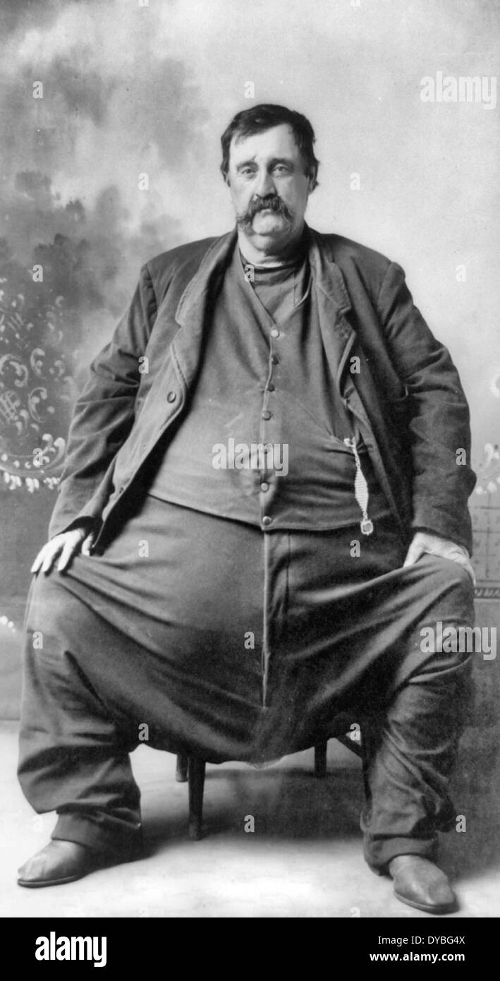 C - Hoblet. Enorm dicker Mann, sitzend, Ganzkörperansicht, nach leicht links. 1909 Stockfoto