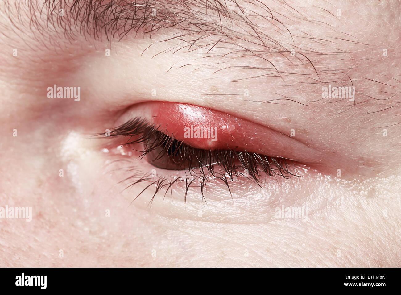 Wunde rote Augen. Chalazion und Blepharitis. Entzündungen Stockbild