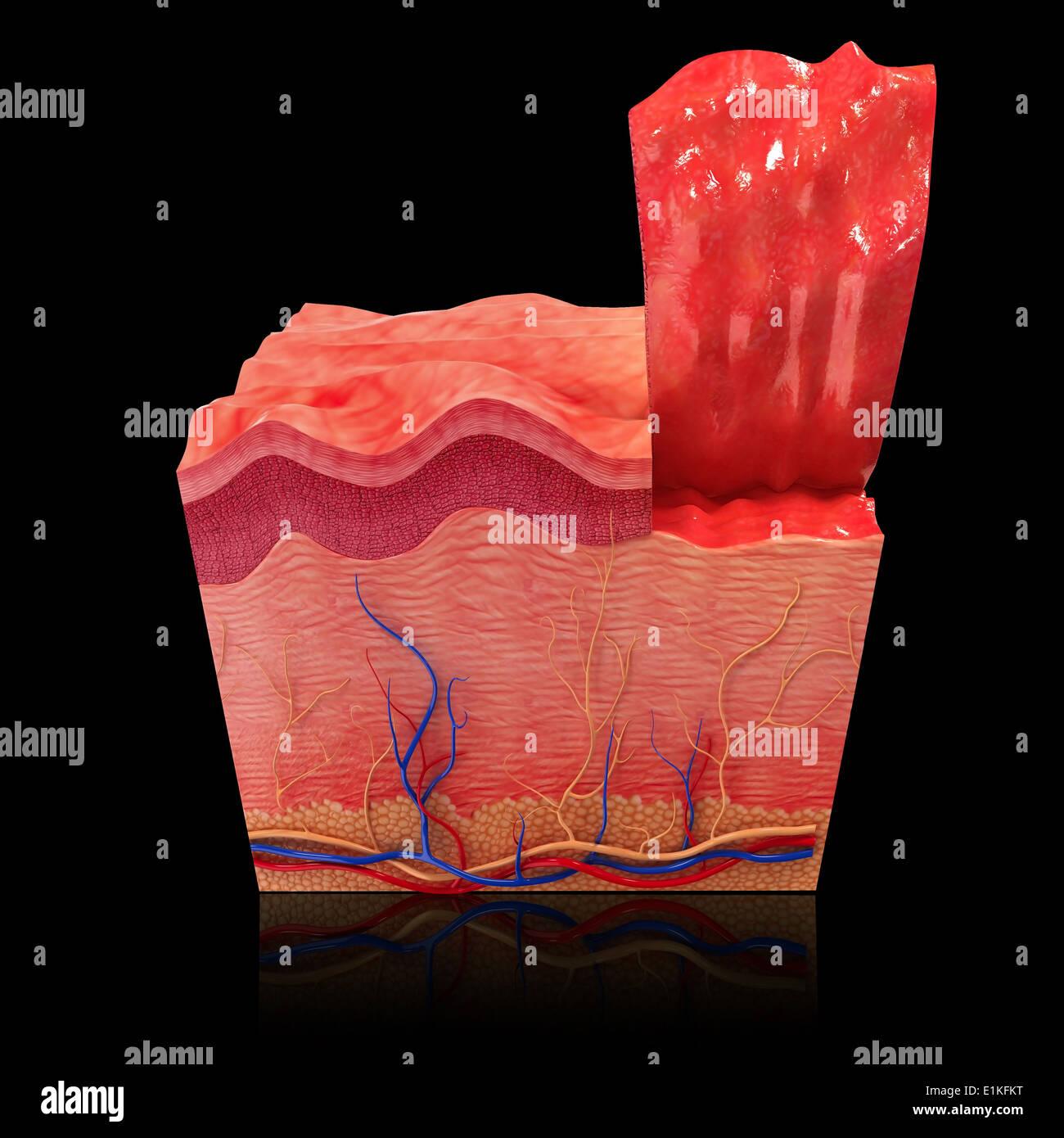 Nett Integumentary System Haut Bilder - Menschliche Anatomie Bilder ...