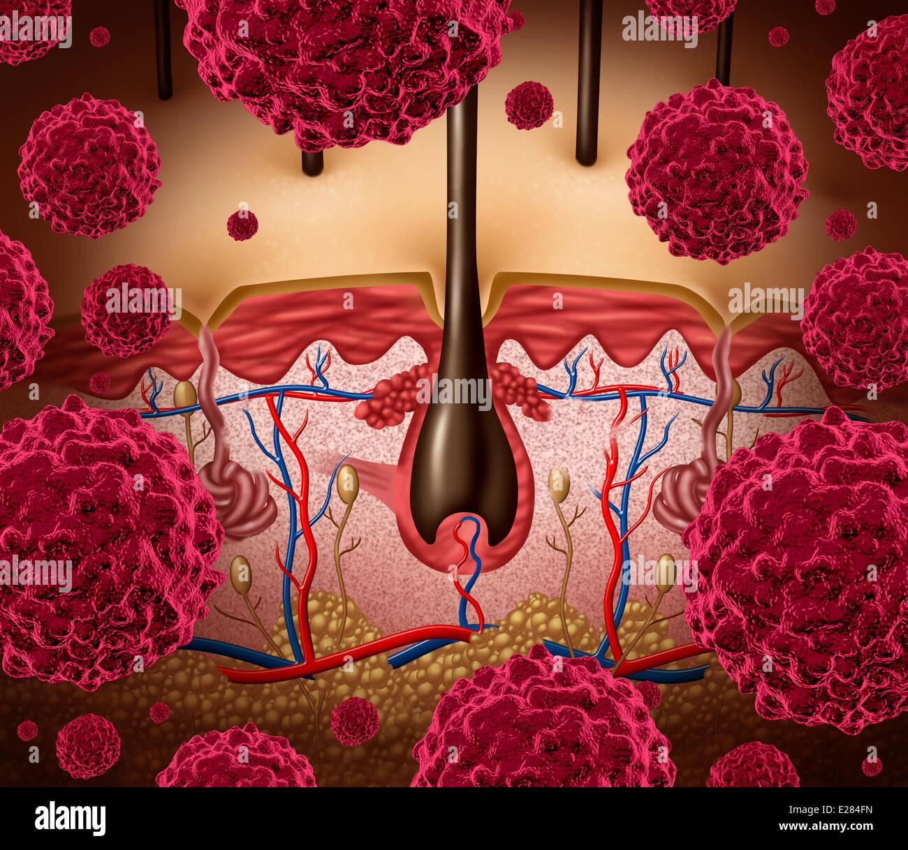 Haut Krebs und Melanom medizinisches Konzept als eine menschliche ...