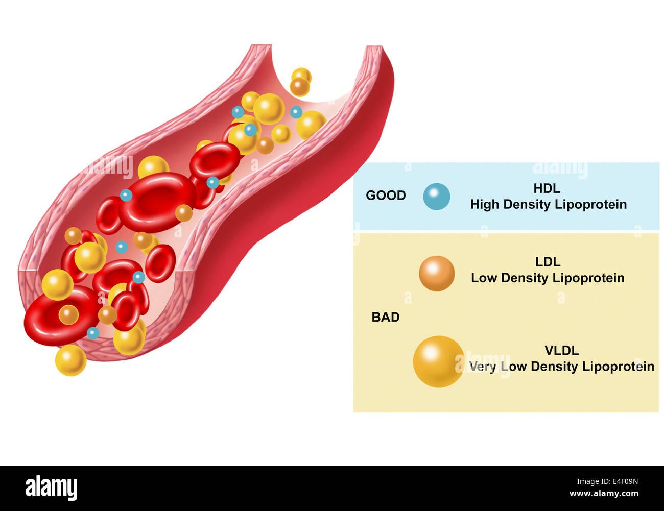 Gute und schlechte Cholesterin im Blut gefunden. Stockbild