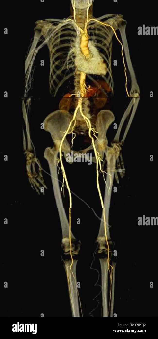 Computertomographie (CT) Wiederaufbau 3D-Scan eines menschlichen ...