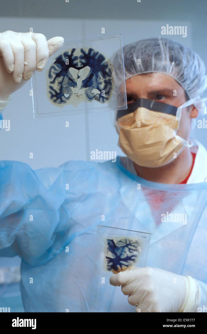 Morphologische Pathologie-Labor, Prion-Krankheiten-Studie. Gehirn-Abschnitte. Stockbild