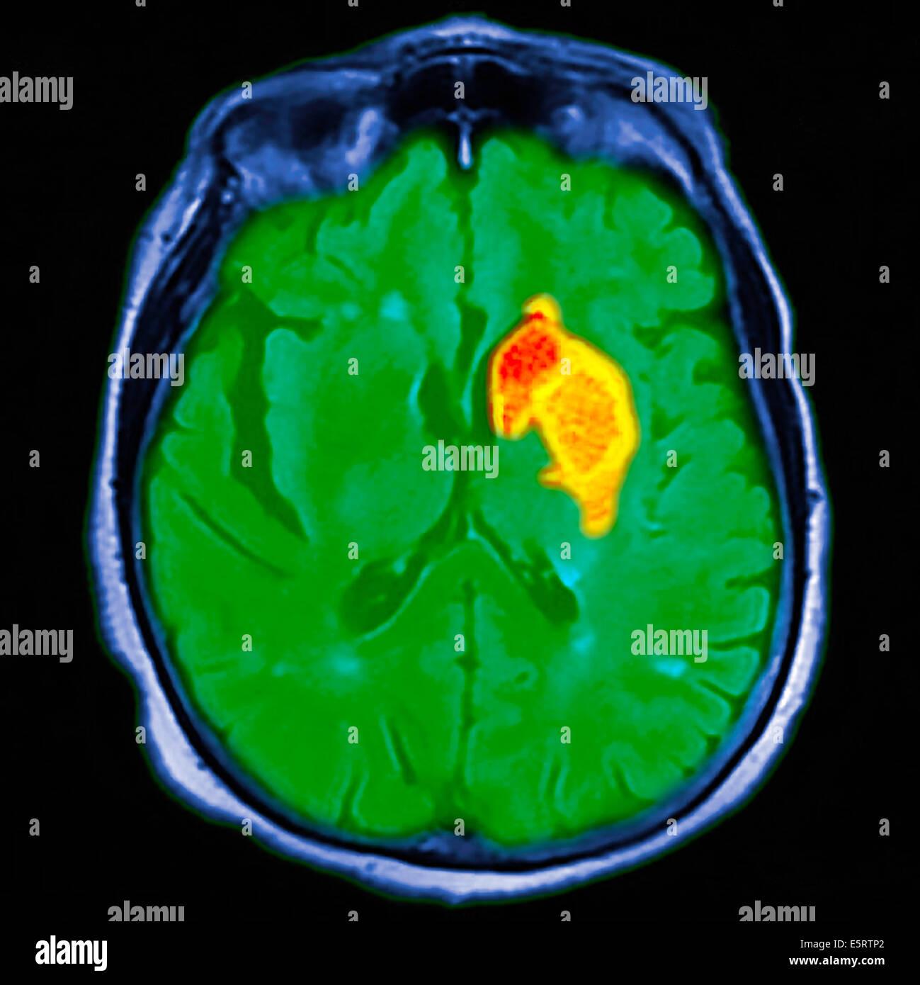 Farbige Magnetresonanz-Bildgebung (MRI)-Scan und CT eine axiale ...