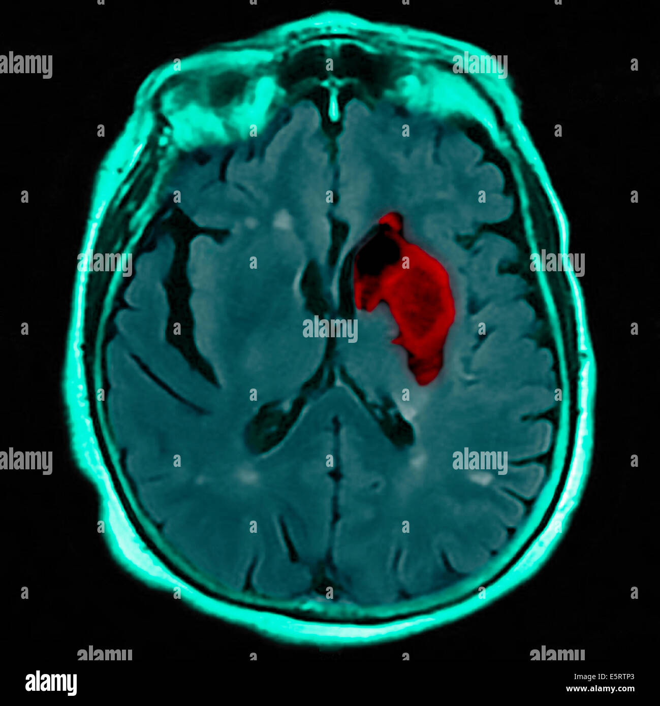 Magnetic Resonance Imaging (mri) Stockfotos & Magnetic Resonance ...
