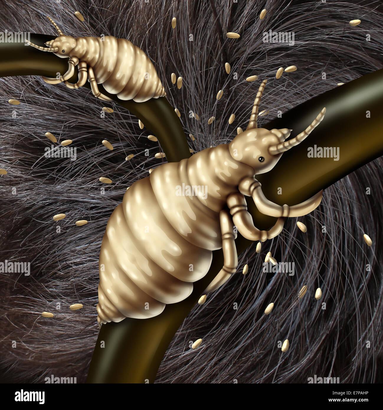 Läuse im Haarproblem als ein medizinisches Konzept mit einem Makro Nahaufnahme eines menschlichen Kopfes mit Stockbild