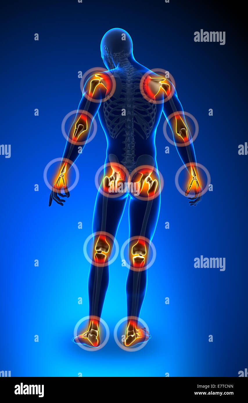 Gelenke Schmerzen - ganzer Figur - Arthritis Stockbild
