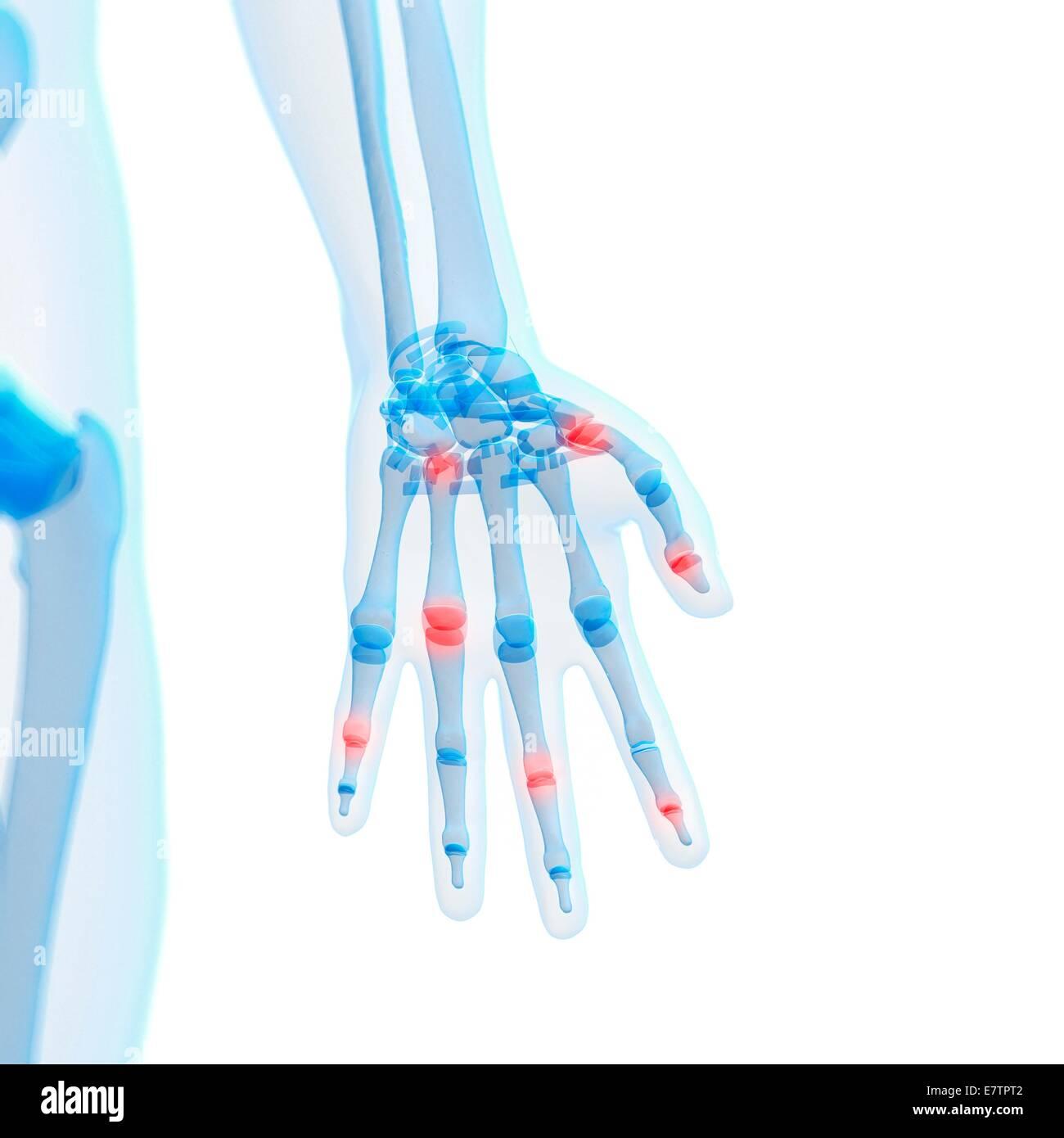 Hand Three Fingers White Stockfotos & Hand Three Fingers White ...