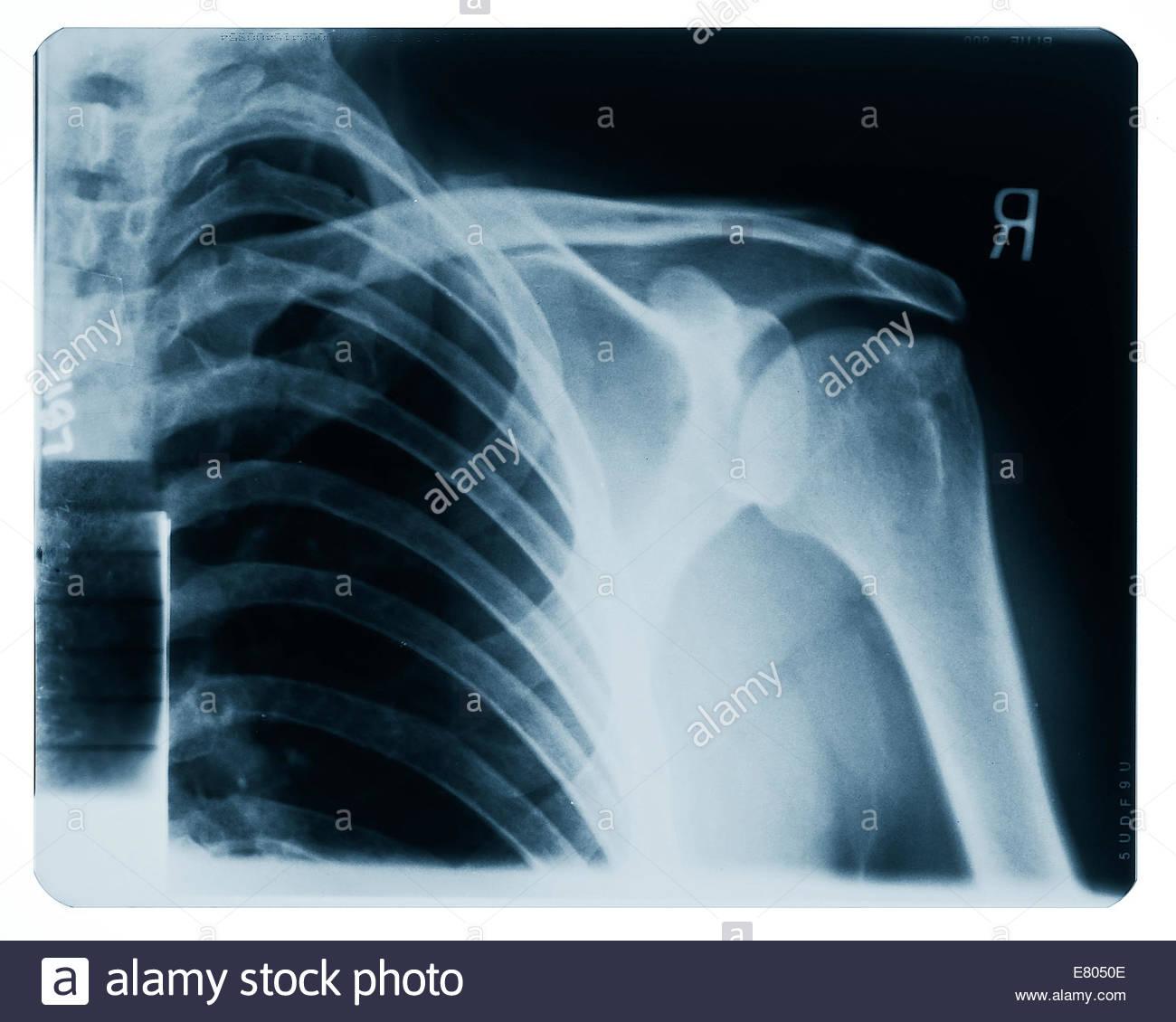 Röntgenbilder von Brust, Schulter, Arm & Körper teilen. Prüfen Sie ...