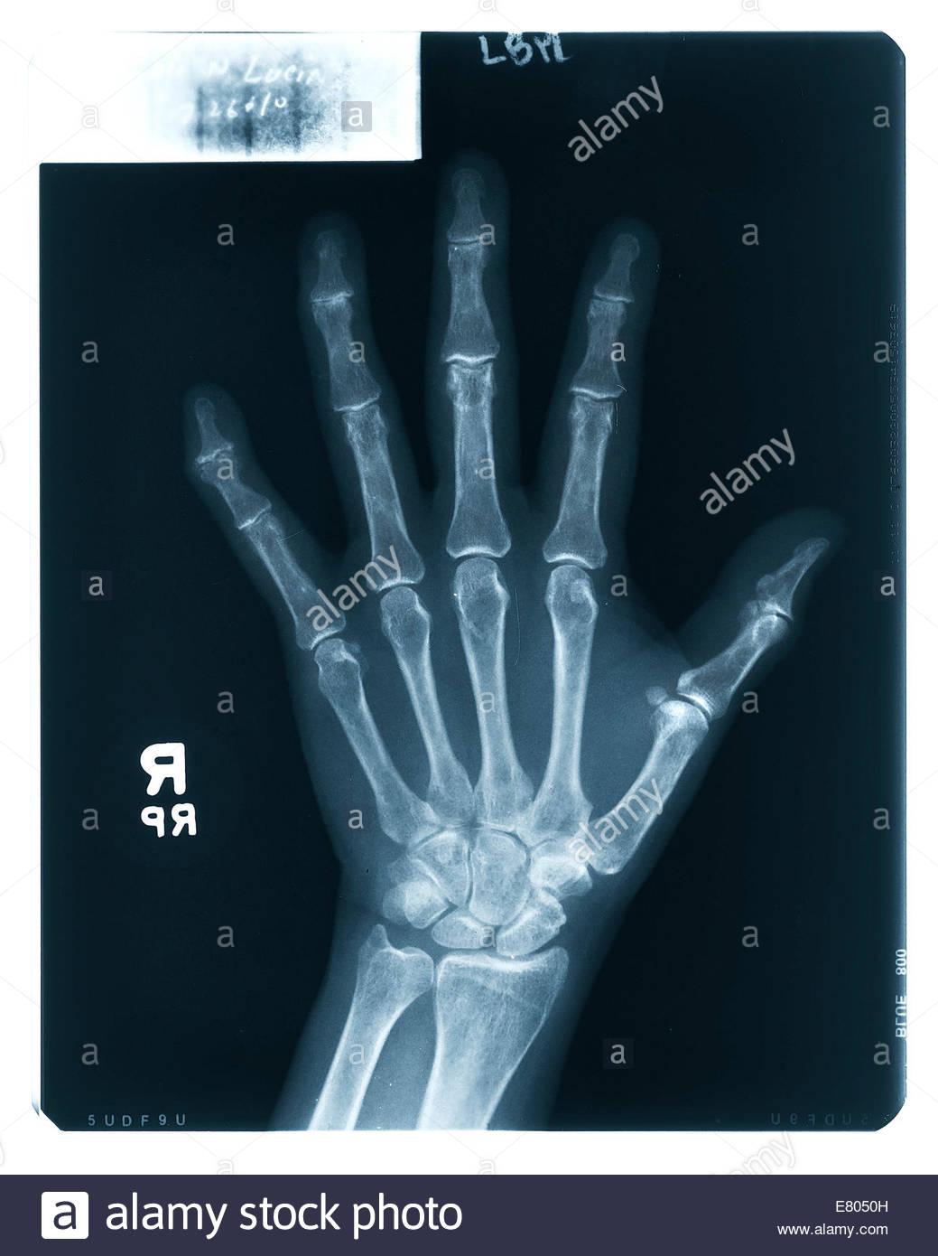 X-ray Test Bilder der menschlichen Finger, Gelenke, Hand, Handgelenk ...
