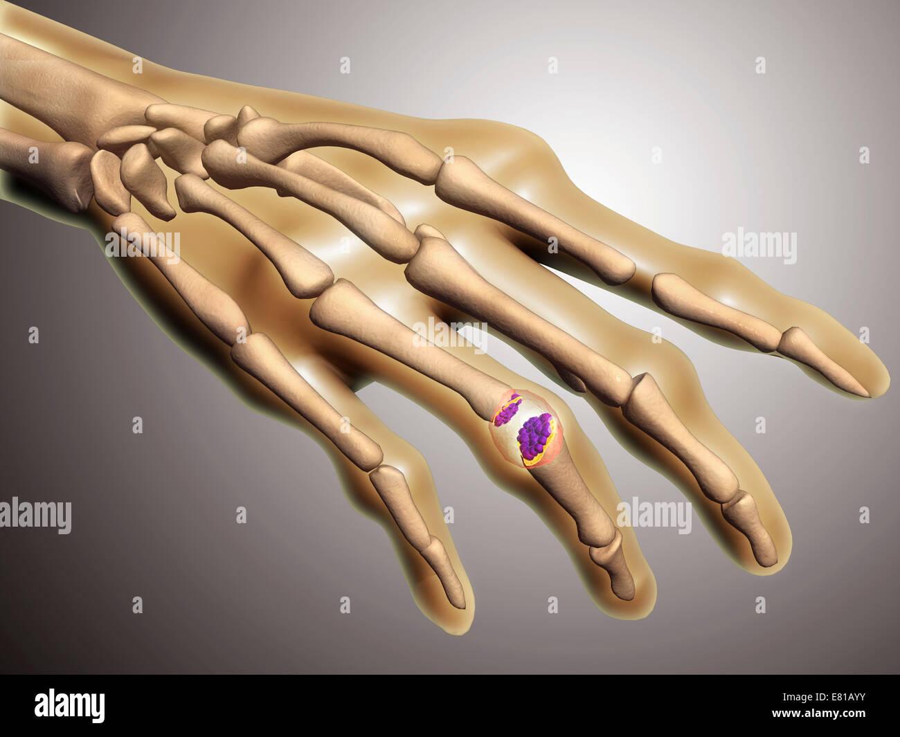 Konzeptbild der rheumatoiden Arthritis (RA) in die menschliche Hand. RA ist eine chronische entzündliche Erkrankung, Stockbild