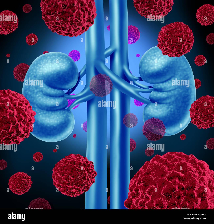 Niere Krebs medizinisches Konzept als Krebszellen in einem menschlichen Körper Angriff auf die Harnwege und Stockbild