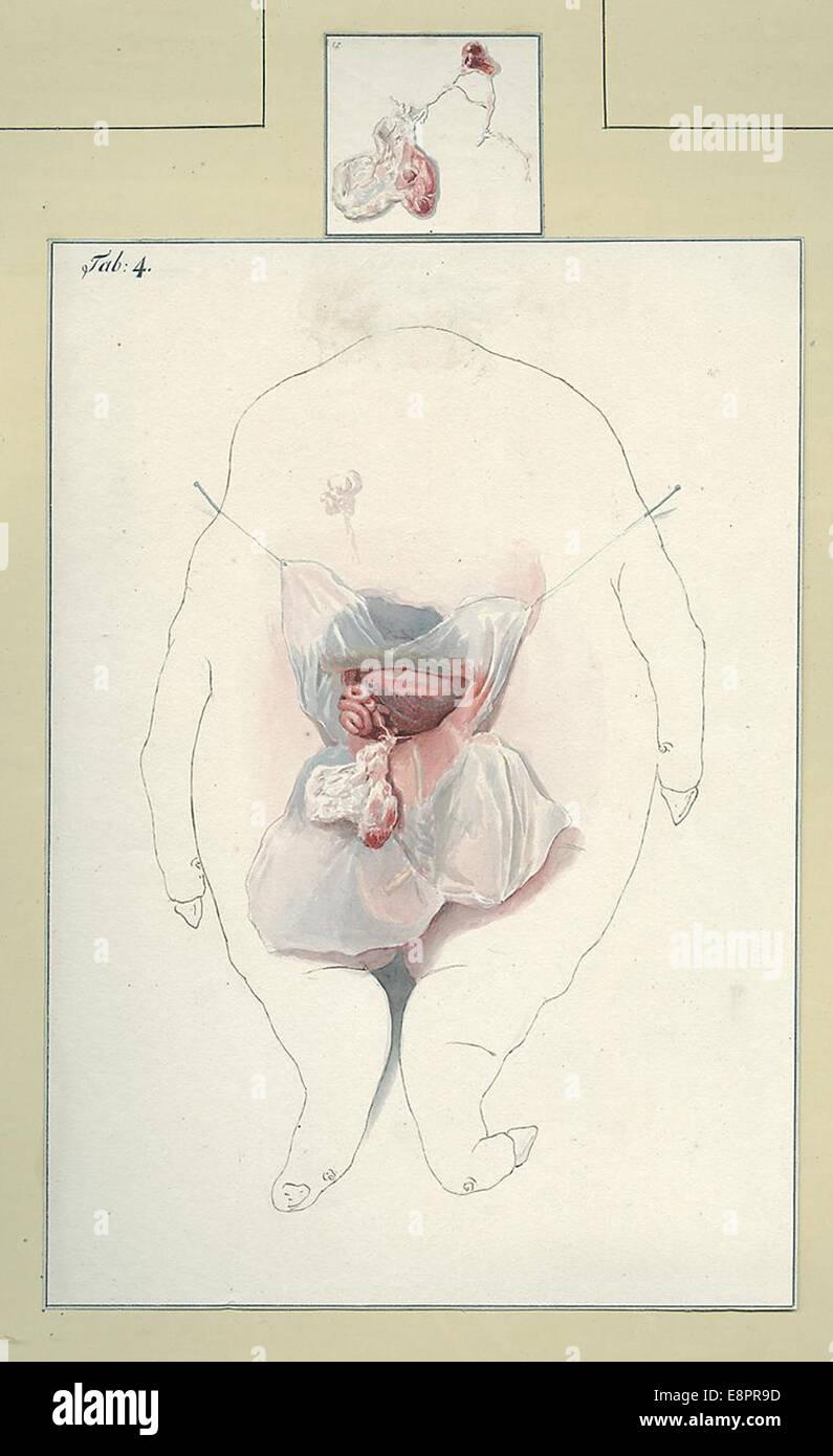 Datum: ca. 1820-1840 Bildbeschreibung: eine kopflose Schwein Fötus ...