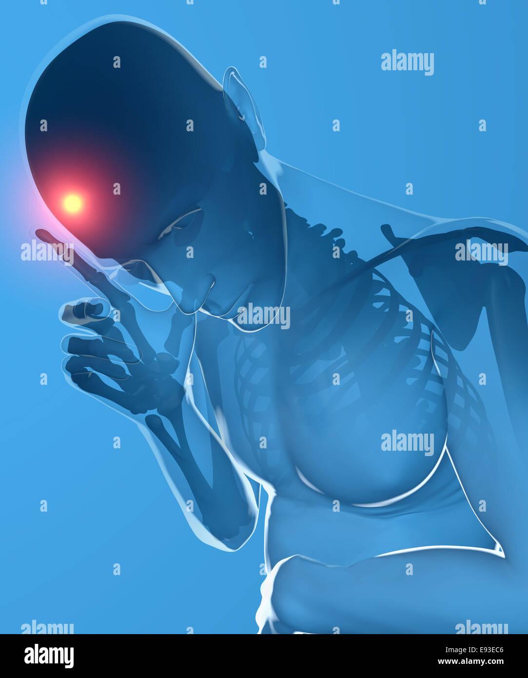 Ein Mann mit Kopfschmerzen unter Röntgenkontrolle. Stockfoto