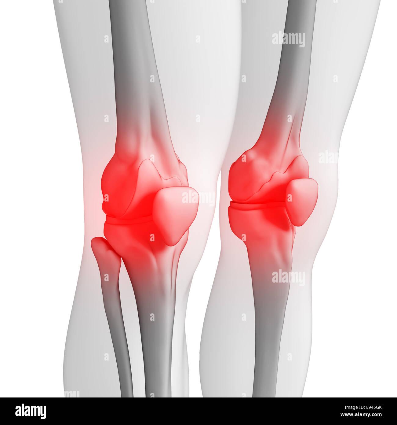 Illustration des menschlichen Knie Schmerzen Kunstwerk Stockfoto