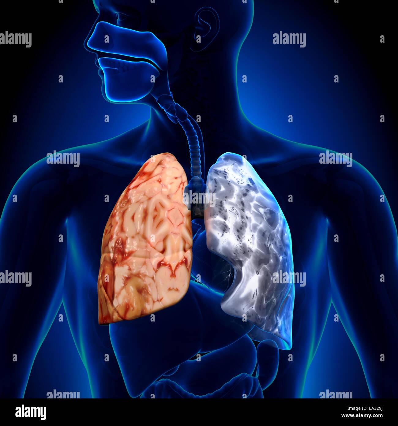 Lunge raucher und nichtraucher Rauchstopp lohnt