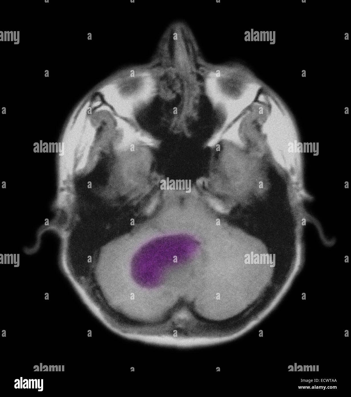 Mri Brain Tumor Stockfotos & Mri Brain Tumor Bilder - Alamy