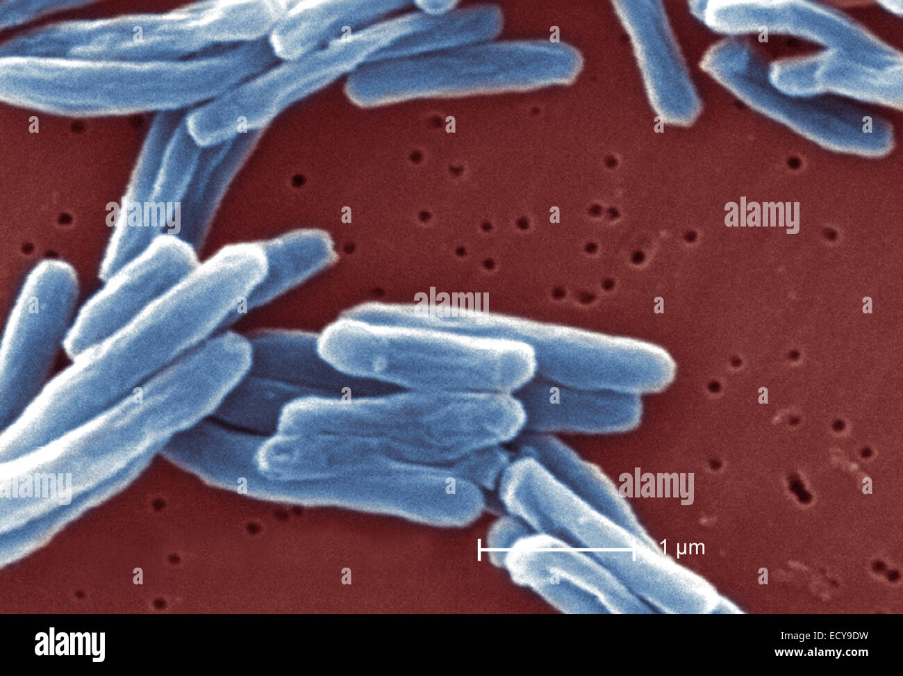 Scanning Electron Schliffbild der Tuberkulose-Bakterien. Stockfoto