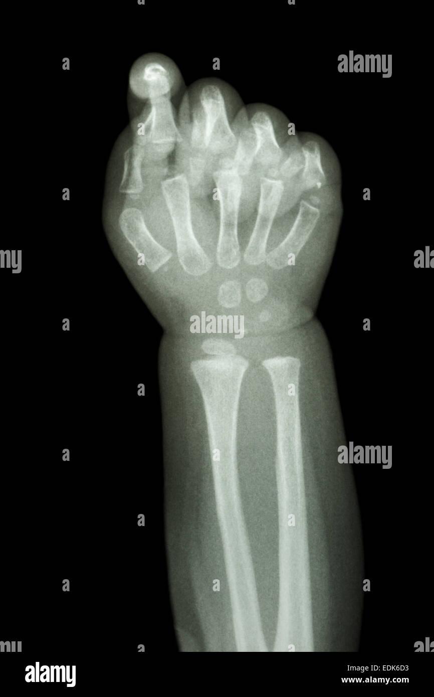 den Film Röntgen Unterarm und Hand: normales Kind Knochen zeigen ...