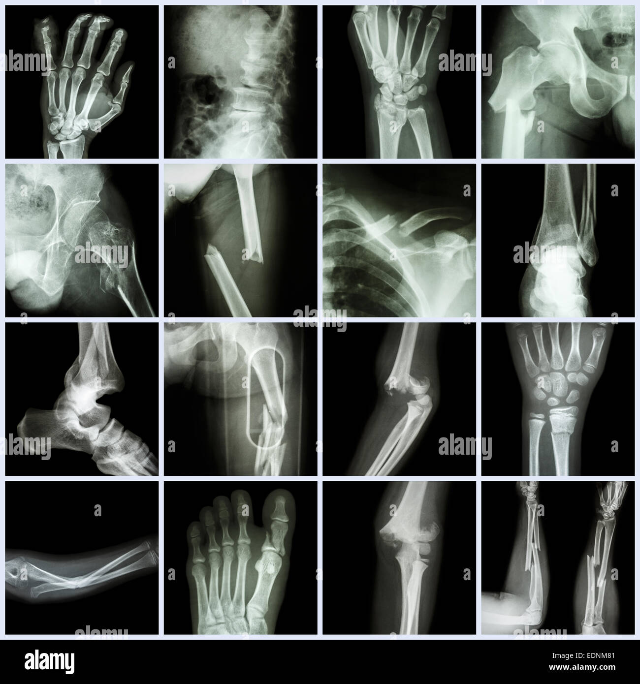 Fracture Arm X Ray Stockfotos & Fracture Arm X Ray Bilder - Alamy