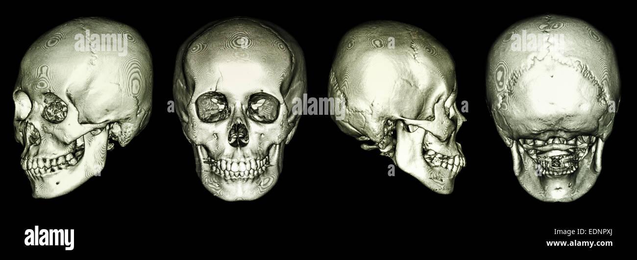 CT-Scan des menschlichen Schädels und 3D Stockfoto, Bild: 77310986 ...