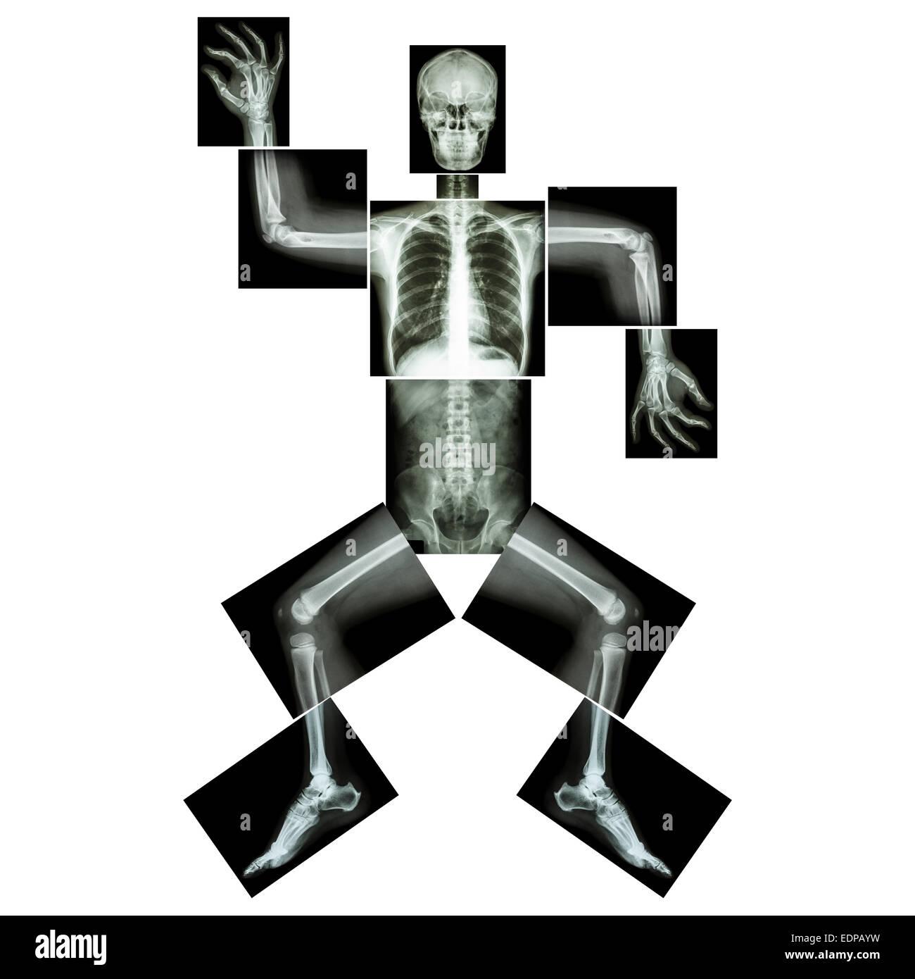 Aerobic Dance (menschliche Knochen tanzt), (Ganzkörper Röntgen: Kopf ...