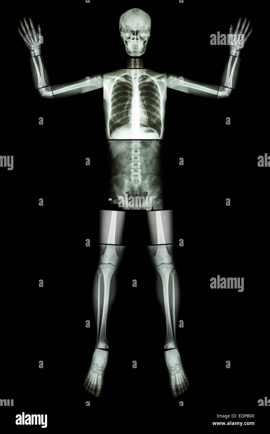 EBOLA aufgeben. (Menschliche Knochen heben die Hand) (Ganzer Körper ...