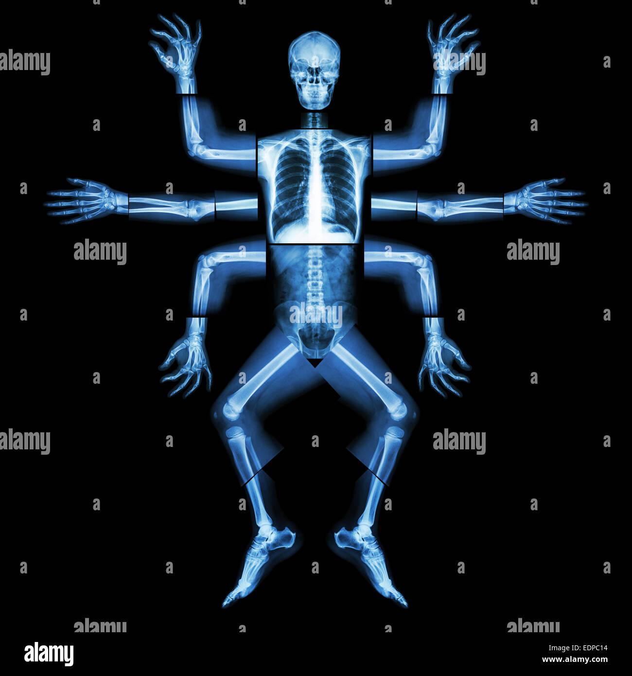 Monster haben viele Arm. (X-ray Ganzkörper: Kopf Hals Schulter Arm ...