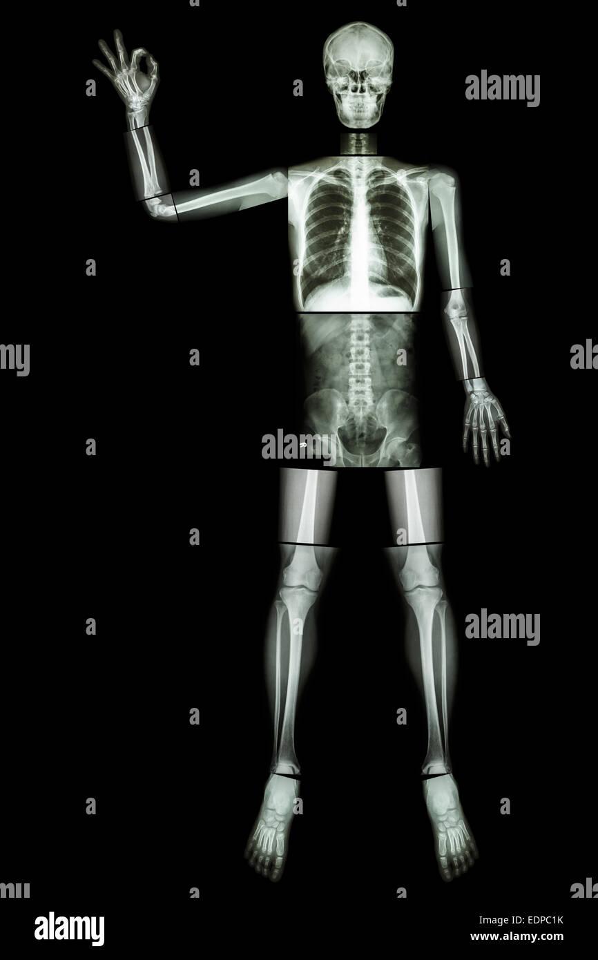 OK Skelett (menschliche Knochen heben die Hand und OK Sign.) (ganzer ...