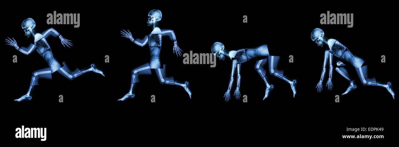 menschliche Knochen läuft. (Schritt ein Rennen), (ganzer Körper ...
