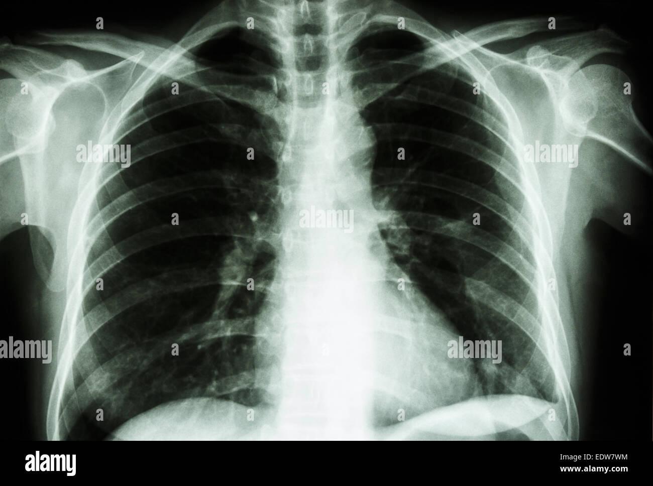 x-ray Film zeigen normale menschliche Brust (Knochen und innere ...