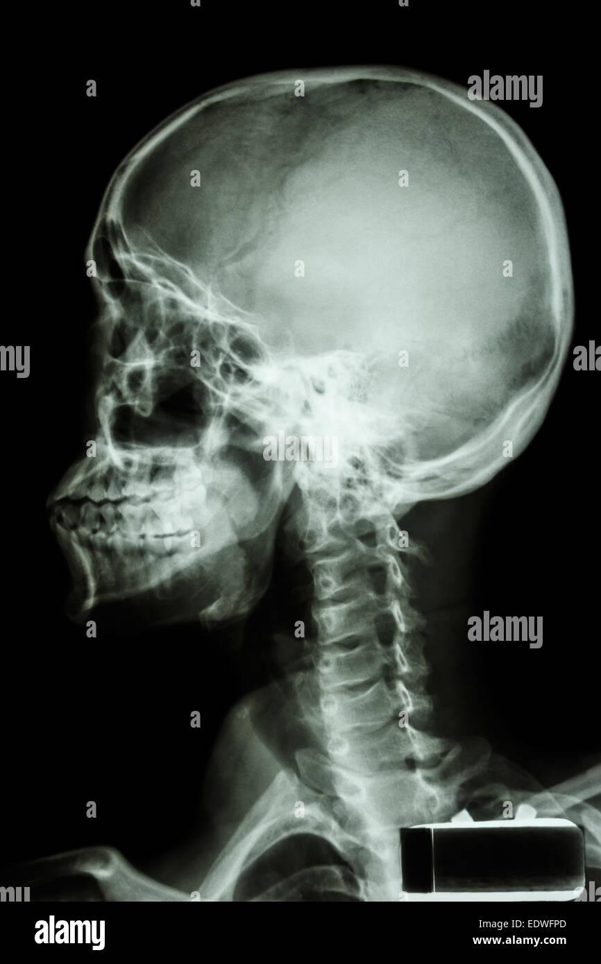 Ausgezeichnet Halswirbelsäule X Ray Anatomie Galerie - Anatomie Von ...