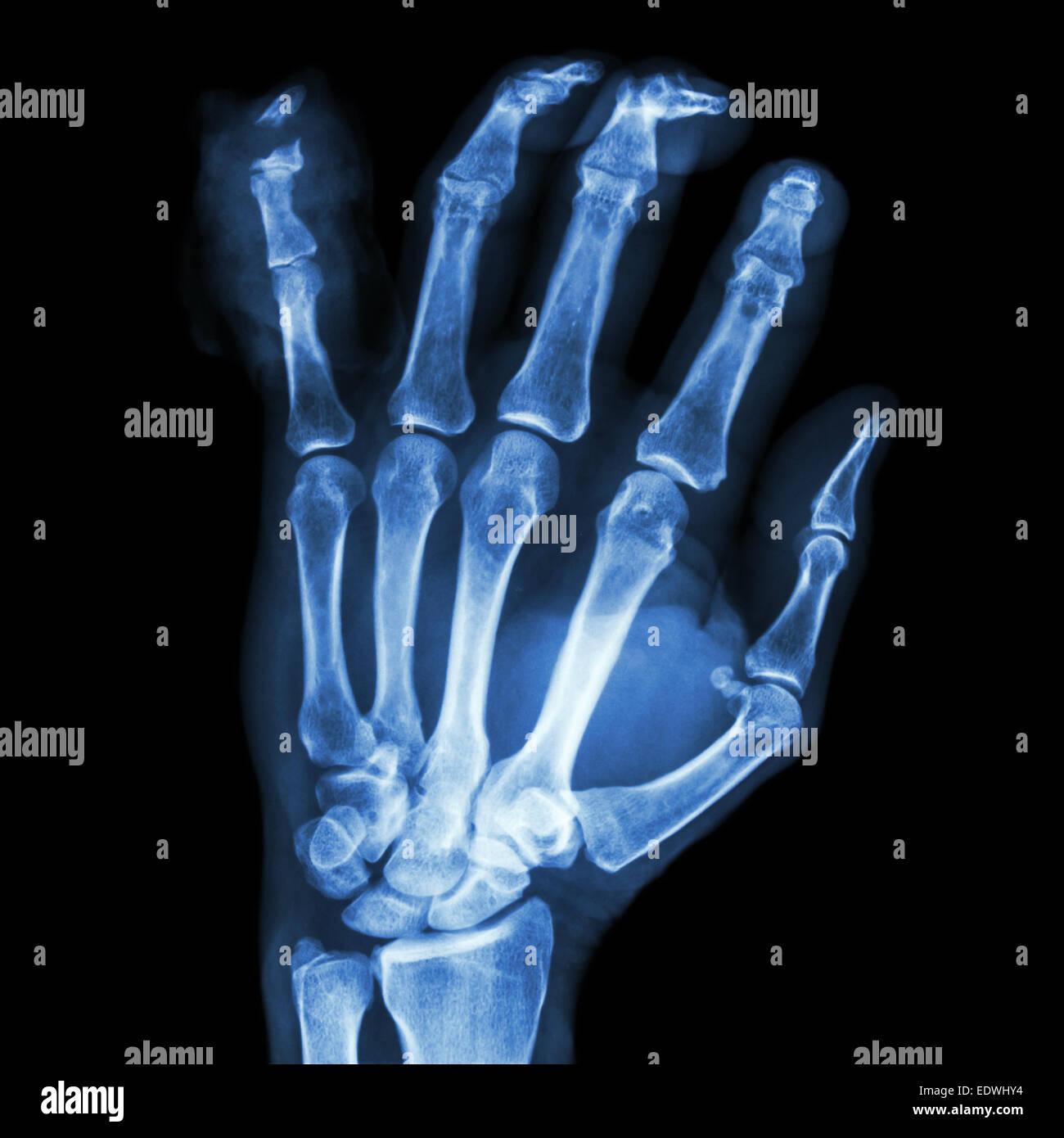 Finger Fracture Stockfotos Finger Fracture Bilder Seite 2 Alamy