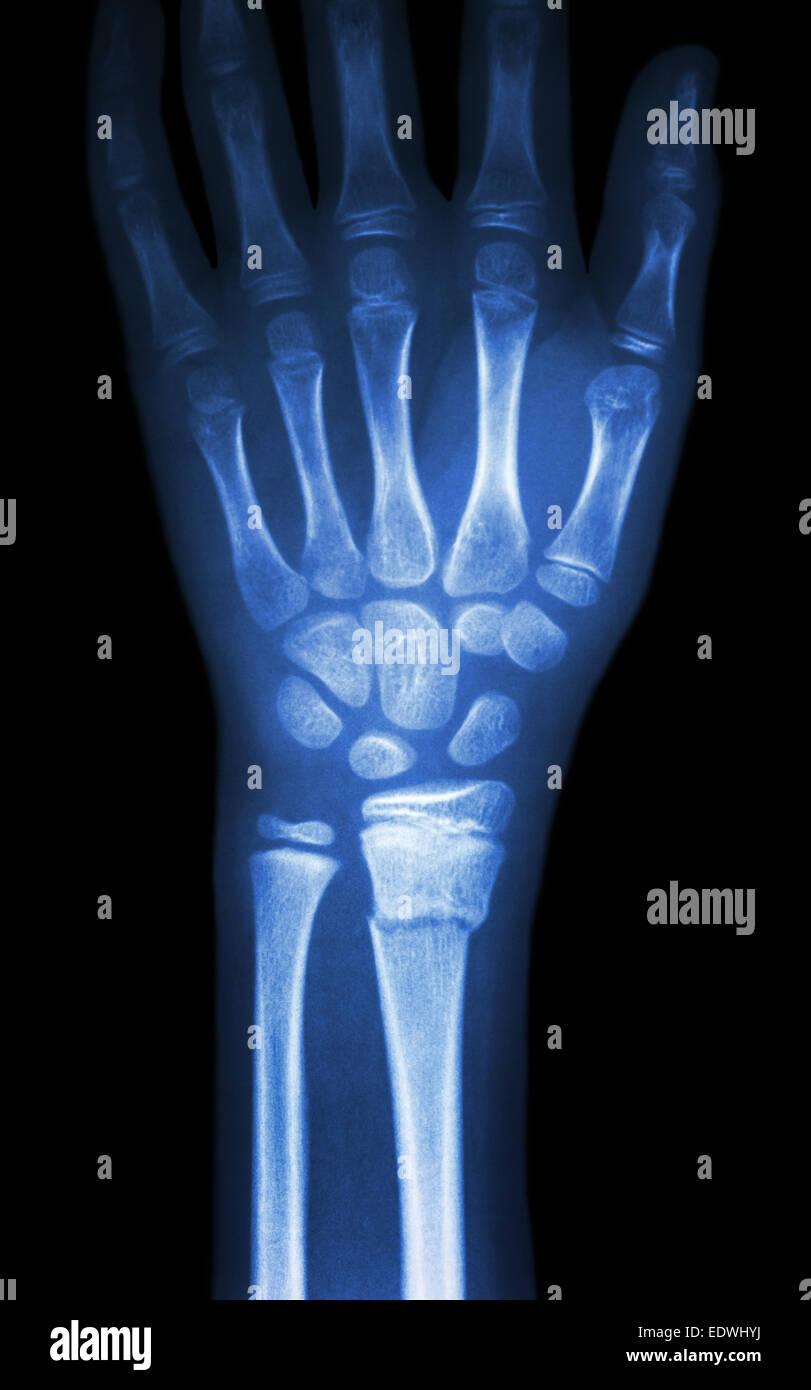 Fiilm Röntgen Handgelenk zeigen Fraktur distale Radius (Unterarm ...