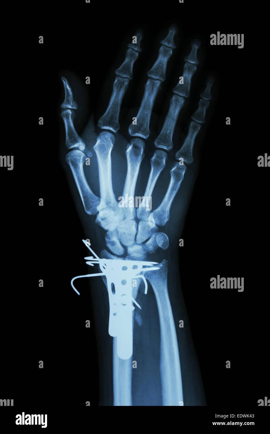 Finger Fracture Stockfotos & Finger Fracture Bilder - Alamy