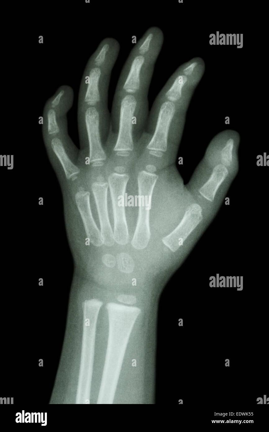 X Ray Of Palm Stockfotos & X Ray Of Palm Bilder - Alamy