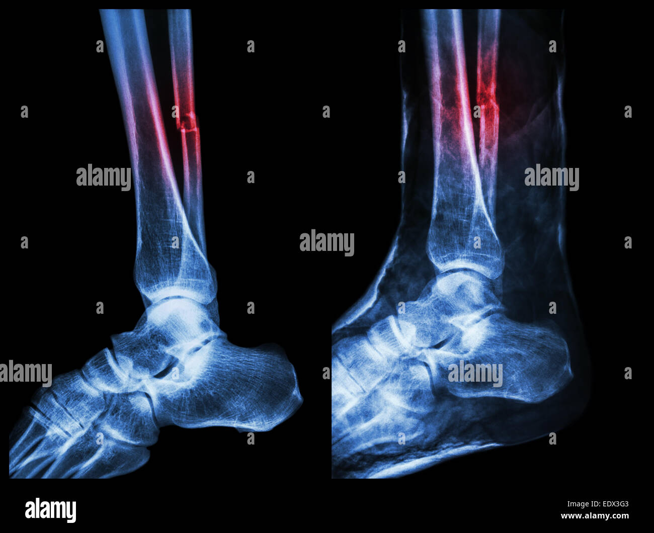 Splinted Stockfotos & Splinted Bilder - Alamy