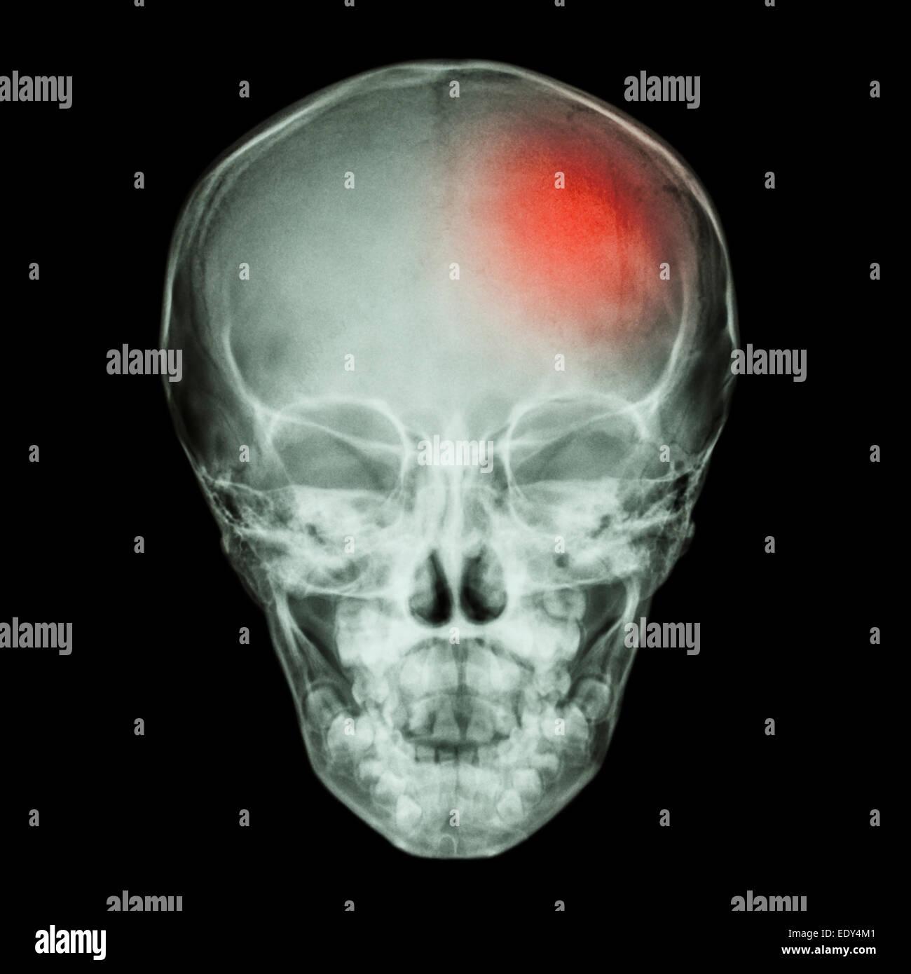 Röntgen Schädel von Kind und Schlaganfall (Apoplexie Stockfoto, Bild ...
