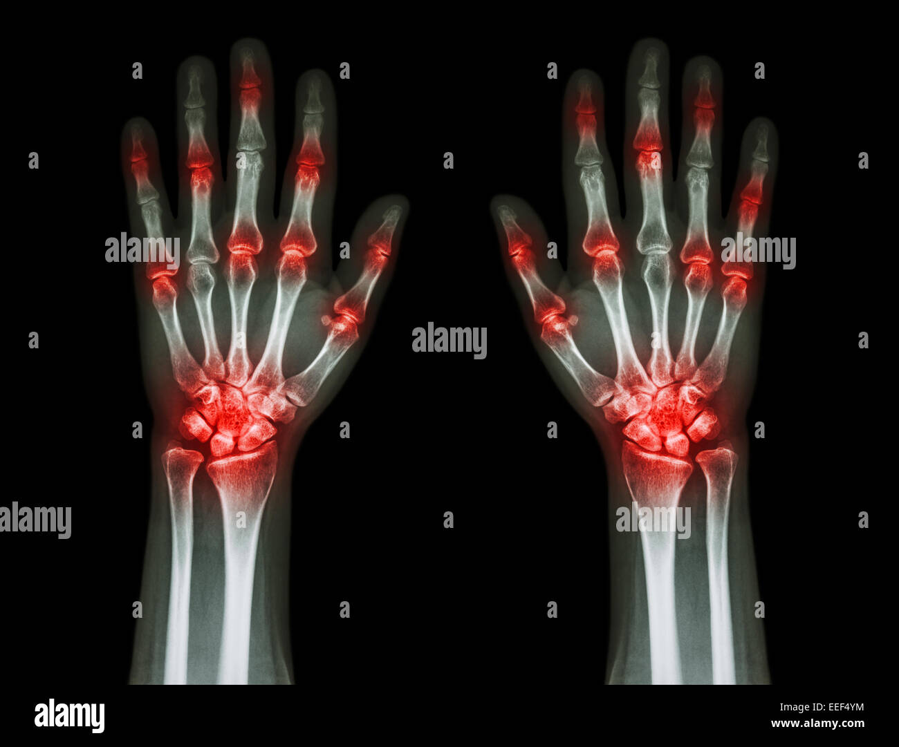 mehrere gemeinsame Arthritis Hände (Gicht, rheumatoide) auf schwarzem Hintergrund Stockbild
