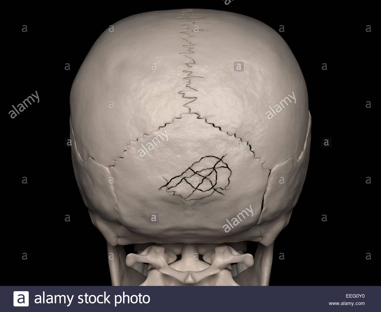 Digitale medizinische Illustration, Darstellung einer zerkleinerten Schädeldaches Fraktur des Occipital Knochens Stockbild