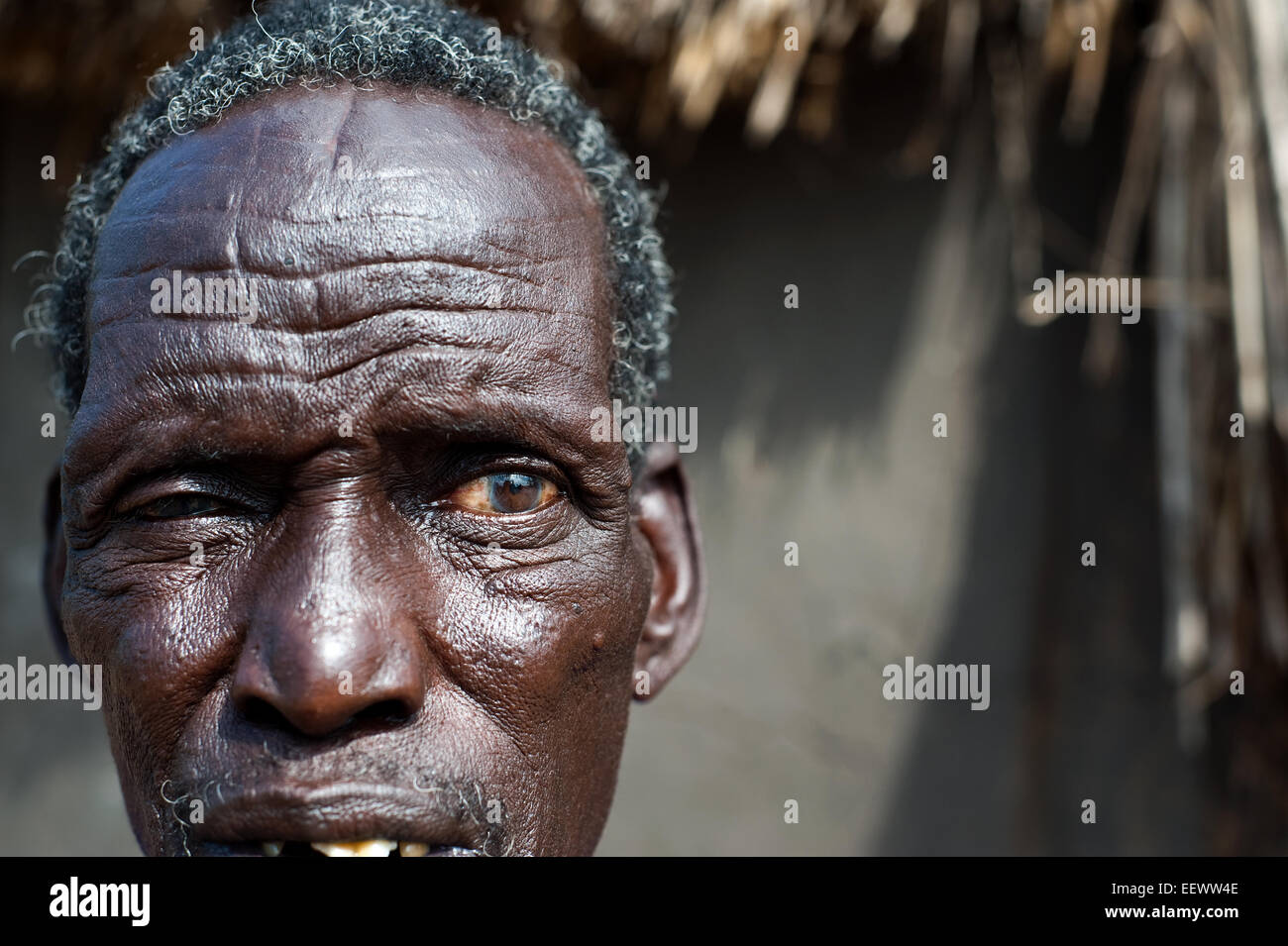 Mann aus der Nuer Stamm mit traditionellen Scarifications auf der Stirn. Er ist ein Flüchtling aus dem Südsudan Stockbild