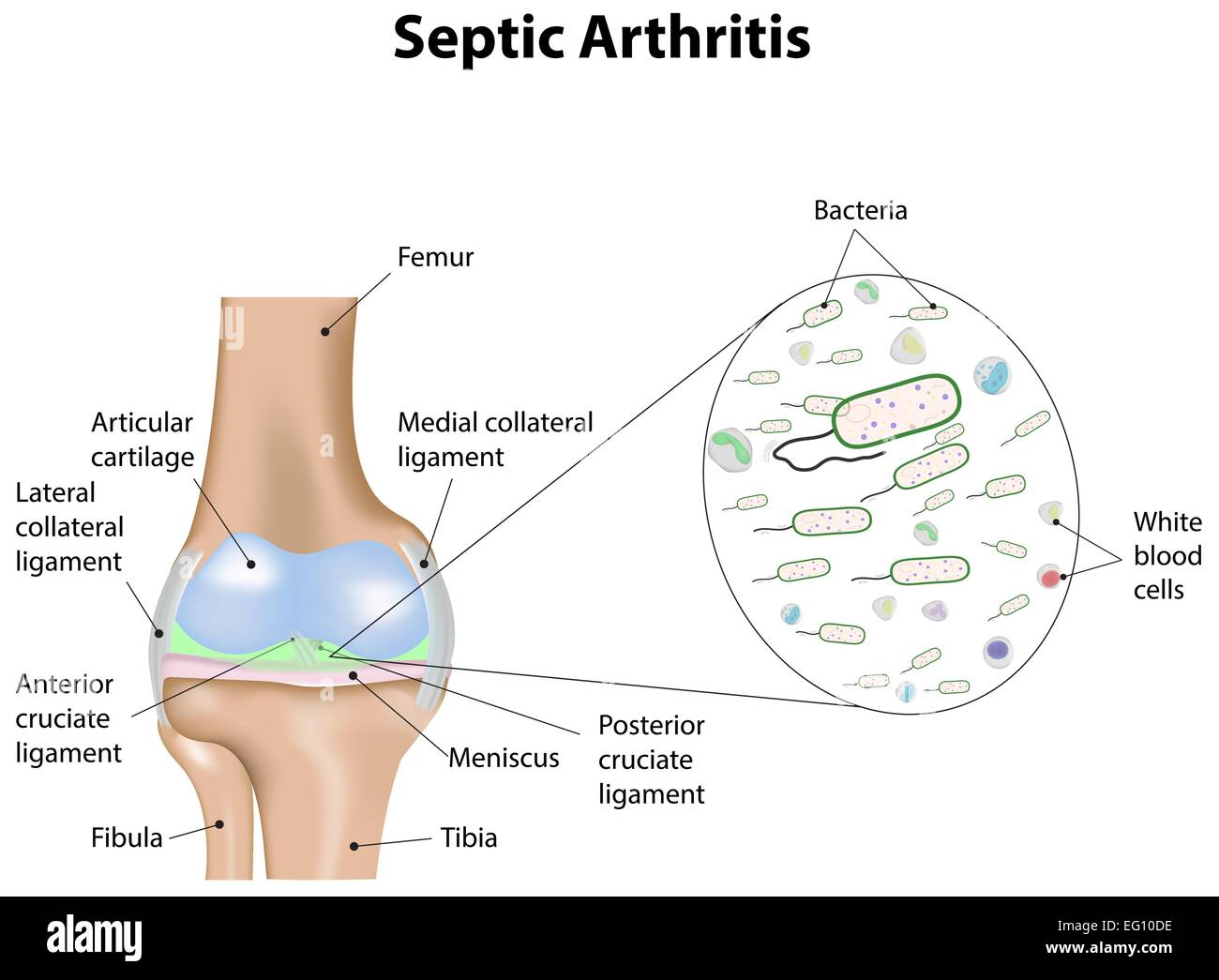 Septische Arthritis Stockbild
