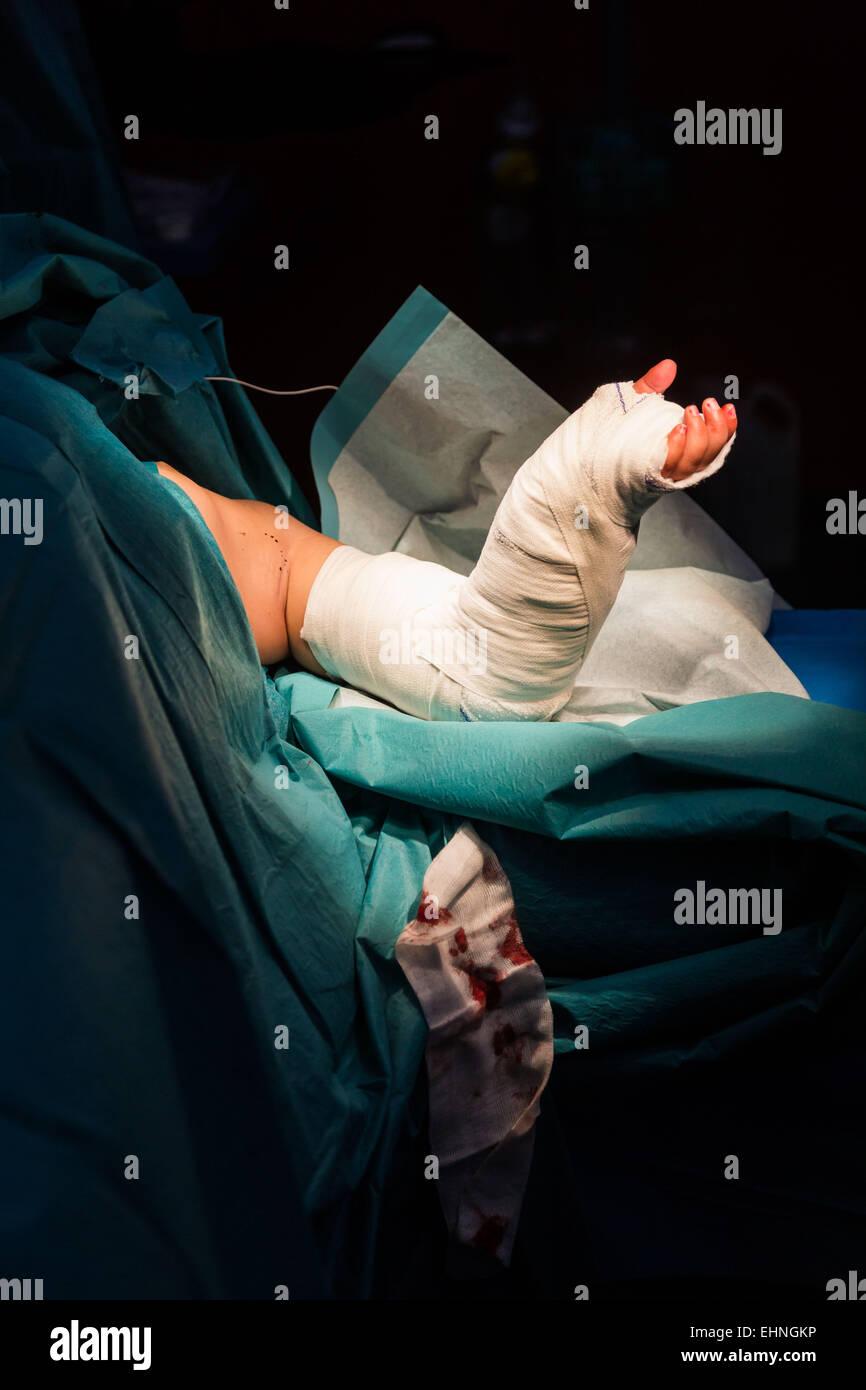 Verlegung einer Besetzung nach Handchirurgie. Stockbild