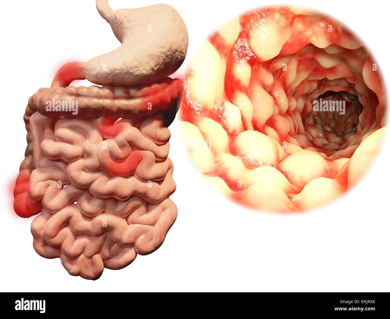 crohn\'ss Krankheit, Magen-Darm-Trakt, chronisch entzündliche ...