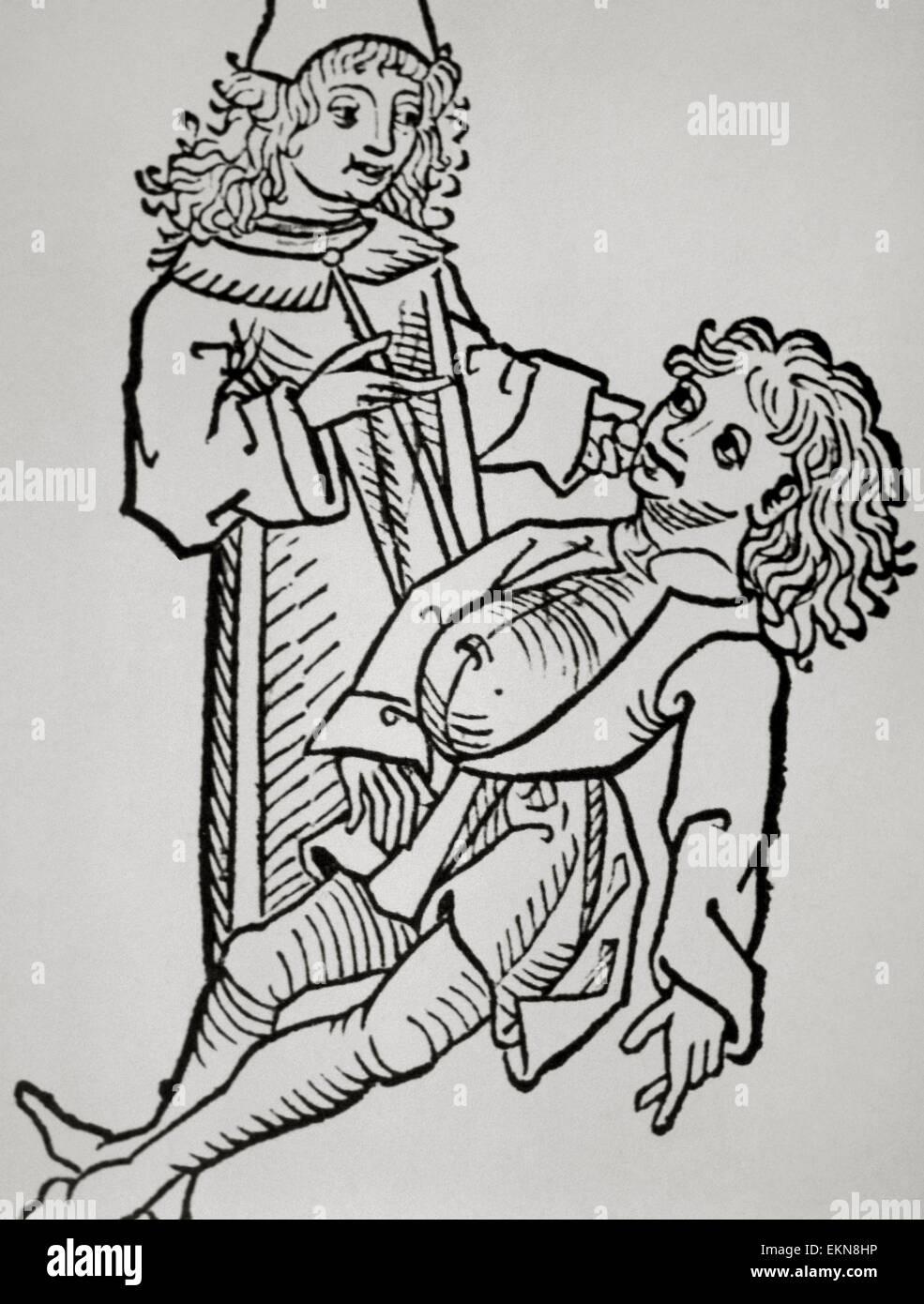 Geschichte der Medizin. Neuzeit. Bauch Infaldo. Zirrhose. Holzschnitt. Hortus Sanitatis. 14. Jahrhundert. Stockbild