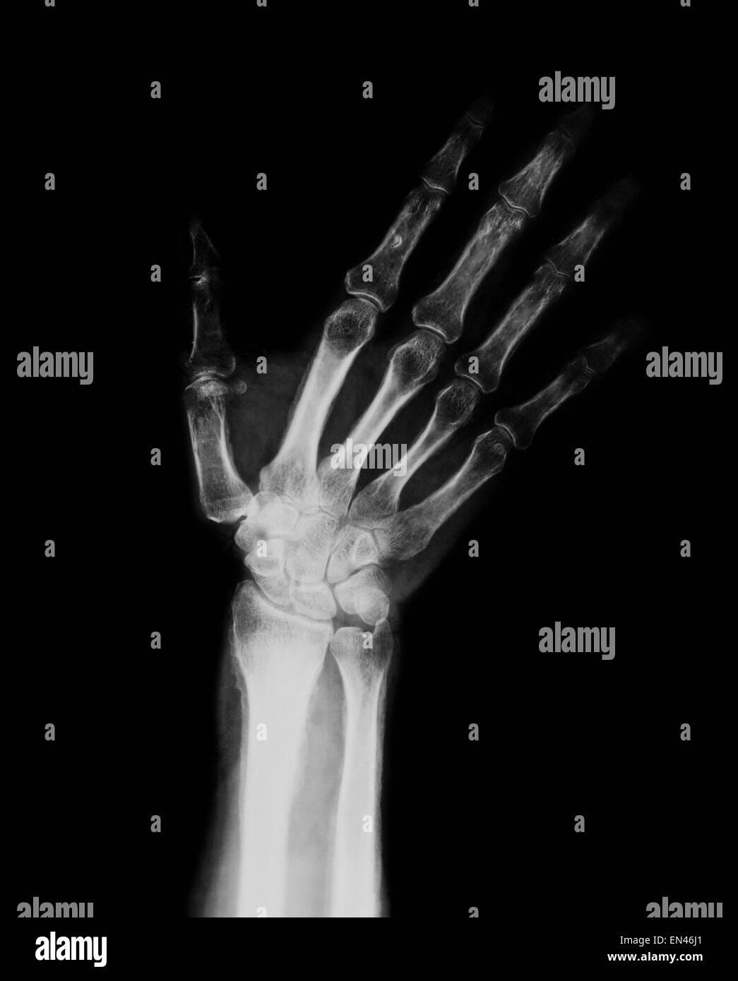 XRAY durch Erwachsene Hand und Handgelenk mit Radius und Ulna ...