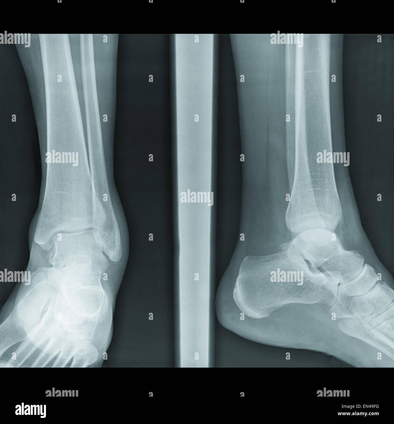 der verletzte Gelenkkapsel Beine auf authentische Röntgen Bild ...
