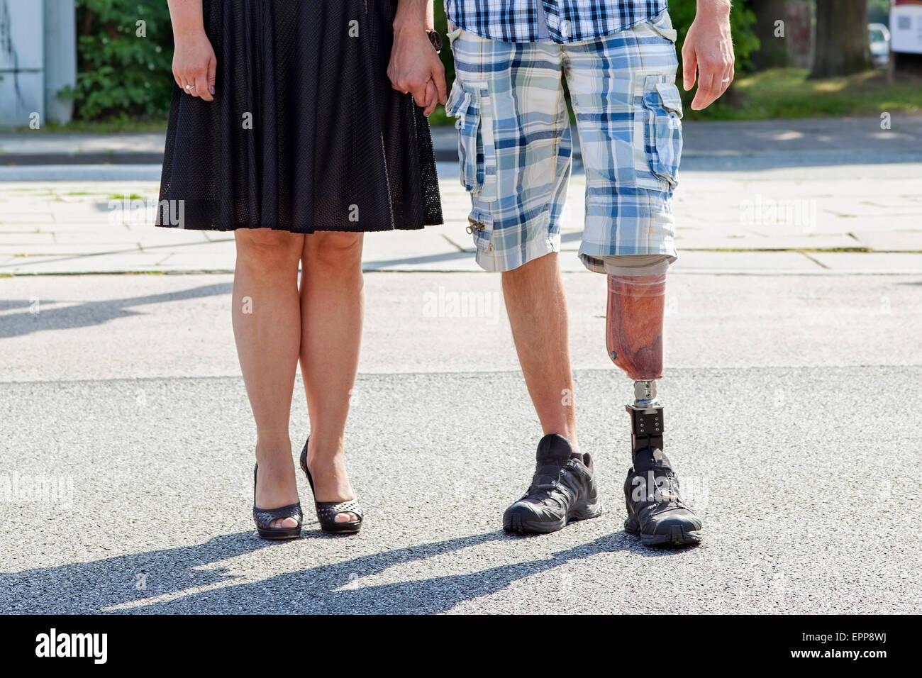 Amputiert frau hopping bein Behandlungsfehler: Ärzte